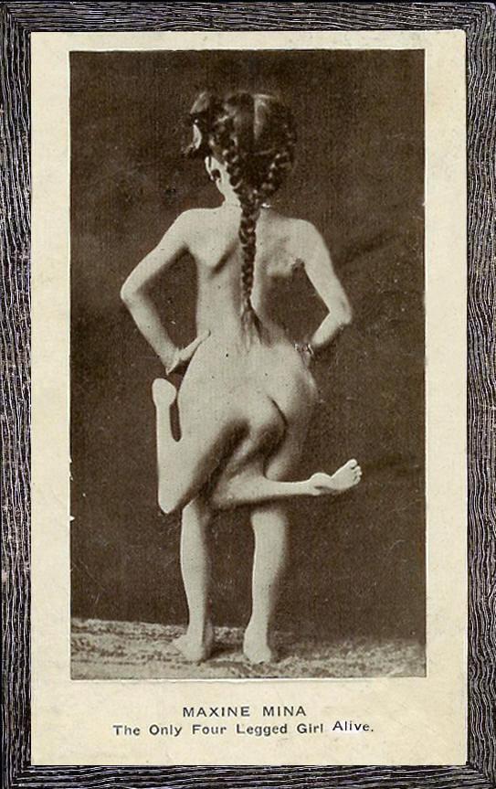 Maxine Mina, dívka se čtyřmi nohami