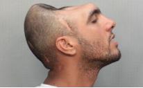 Muž s půlkou hlavy